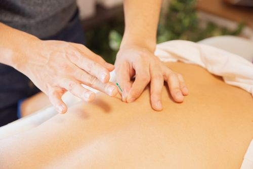 Acupuncture Could Give You Libido an Unexpected, but Effective, Boost - Here's How